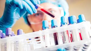 Chart‑Check Epigenomics: Das sieht gar nicht gut aus