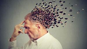 Biogen‑Aktie nach dem spektakulären Alzheimer‑Comeback: Das sagen die Analysten!