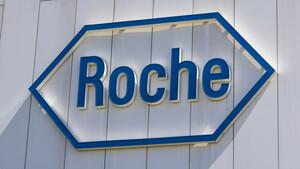Dividendengarant Roche: Schwache Zahlen, aber …