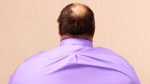 Weight Watchers: Dick im Geschäft